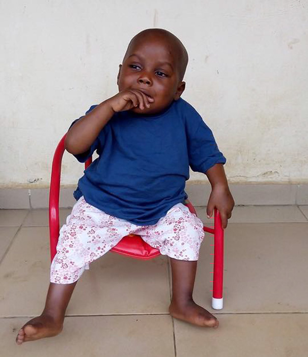 nigerian witch boy starving thirsty recovery anja ringgren loven 04 2 Year Old 'Witch Child' Who Was Left To Die Makes Stunning Recovery
